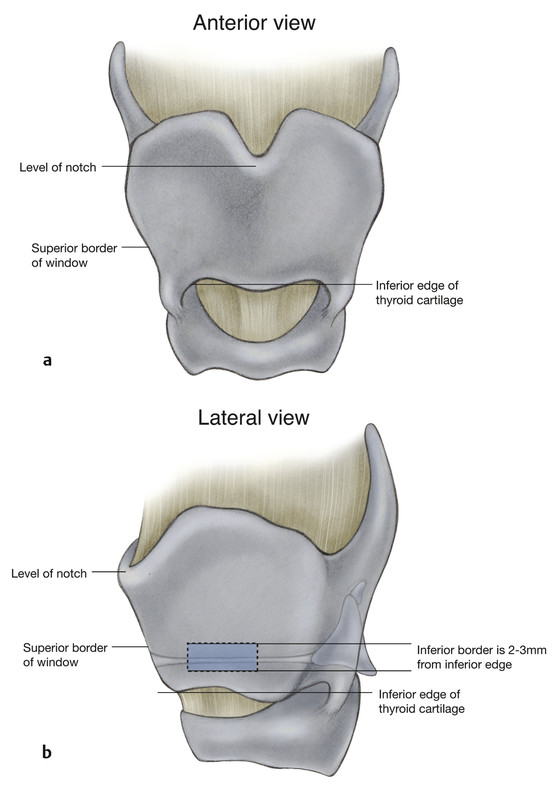 (a,b) Landmarks of the thyroid cartilage showing location of the window within the thyroid cartilage created for medialization laryngoplasty (Type 1 thyroplasty).