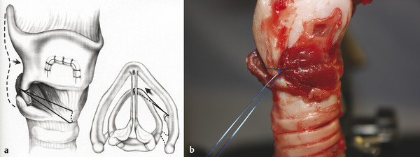(a) Cricothyroid subluxation: a suture is first tied to the inferior cornu of the thyroid cartilage and the routed under and around the anterior rim of the cricoid cartilage. (b) Cricothyroid subluxat