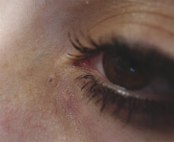 External photograph of a young woman with a supranumerary punctum in a typical location inferior to the medial commissure of the eyelids.