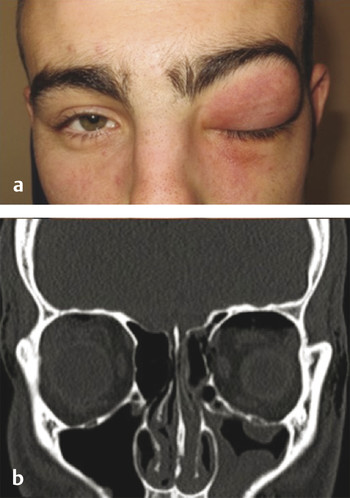 Orbital emphysema. (a) Clinical. (b) CT (computed tomography) scan.