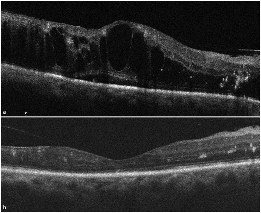 (a) Optical coherence tomography of severe diabetic macular edema with extensive intraretinal fluid and subretinal fluid. (b) Following anti-vascular endothelial growth factor therapy, dramatic improv