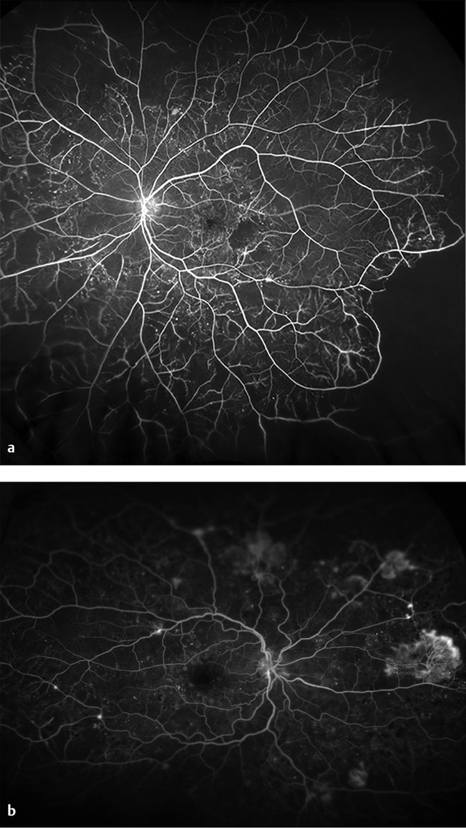 (a) Ultra-widefield fluorescein angiography (UWFA) with proliferative diabetic retinopathy (PDR) showing microaneurysms and severe peripheral nonperfusion with areas of vascular leakage and minimal ne