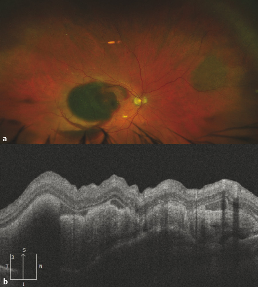 (a) Ultra-widefield fundus photo with extensive subretinal hemorrhage and significant vision loss due to neovascular age-related macular degeneration. (b) Optical coherence tomography demonstrates ret