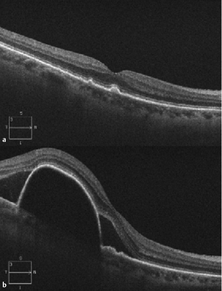 (a) Spectral domain optical coherence tomography at initial presentation with nonneovascular age-related macular degeneration with moderate drusen and no evidence of exudation. (b) Conversion to neova