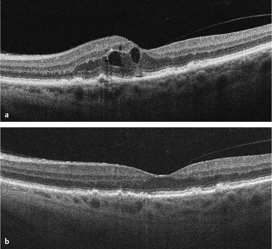 Optical coherence tomography (OCT) with recent conversion to neovascular age-related macular degeneration exhibiting drusen, trace subretinal fluid, and intraretinal fluid. (a) Focal subretinal pigmen