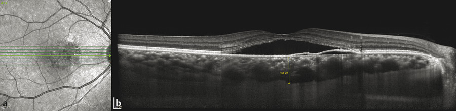 Acute central serous chorioretinopathy. (a) Spectral domain optical coherence tomography (b) with enhanced depth imaging demonstrates serous macular detachment associated with a nasal serous pigment e