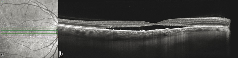 (a,b) Chronic central serous chorioretinopathy. Enhanced depth imaging optical coherence tomography demonstrates neurosensory detachment and a shallow irregular pigment epithelial detachment over a th