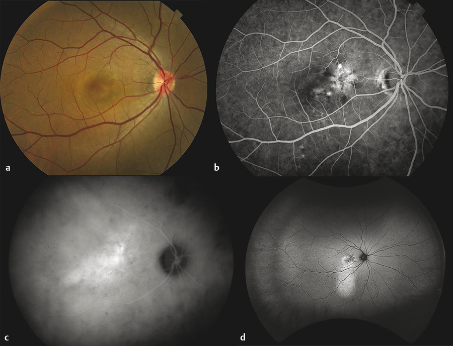 Chronic central serous chorioretinopathy with recurrent serous detachment. (a) Color fundus photograph demonstrates reduced choroidal tessellation at the posterior pole. (b) Arteriovenous-phase fluore