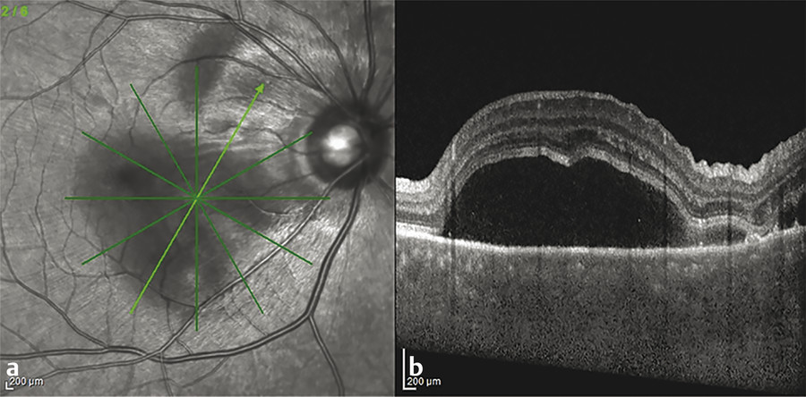 (a,b) Optical coherence tomography in acute Vogt-Koyanagi-Harada uveitis demonstrating multifocal subretinal fluid.