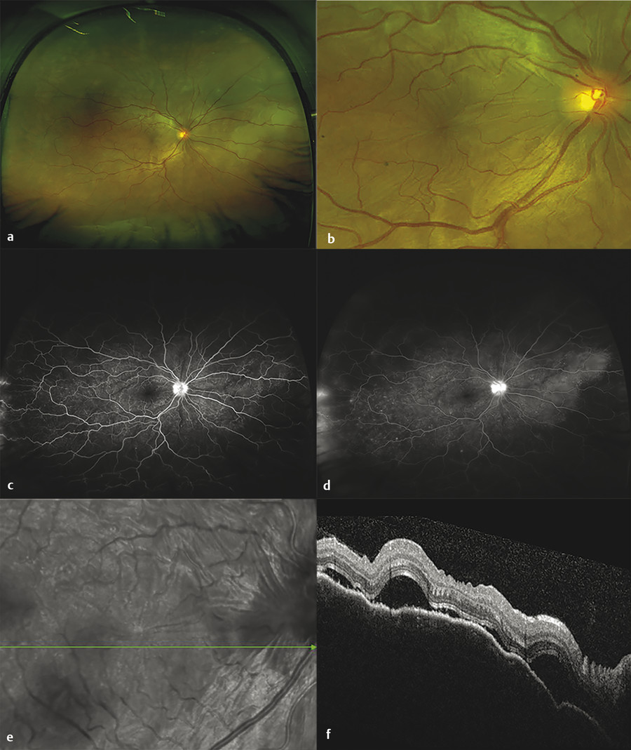 Multimodal imaging in active Vogt-Koyanagi-Harada (VKH). (a) Chorioretinal folds, serous detachment, and inferior pooling of subretinal fluid with serous detachment on ultra-widefield imaging. (b) Cho