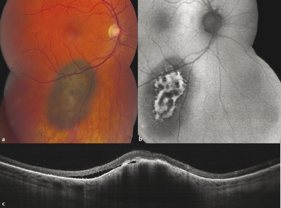 """High-risk choroidal """"nevus"""" suggestive of small melanoma. (a) Fundus photograph demonstrates overlying orange pigment which is confirmed with (b) fundus autofluorescence documenting hyper-autofluoresc"""