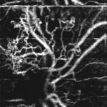 4 Phase-Variance Optical Coherence Tomography