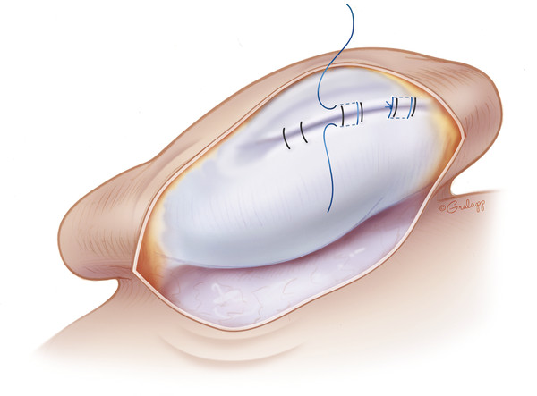 An axial view of pinna demonstrating temporary and permanent suture placement to create the antihelical fold. Note that the permanent suture (shown here in blue) does not violate the skin anteriorly,