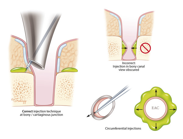 Injection of lidocaine with epinephrine into the ear canal has two purposes: anesthesia and vasoconstriction. Using the speculum to offset the cartilaginous canal, circumferential injections are place