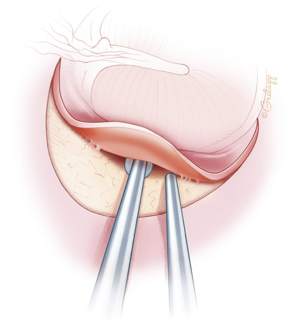 The flap is raised to the level of the tympanic annulus. Care must be taken to avoid traumatizing the flap by aspirating it with the suction. The suction is best kept above the stapes knife blade.