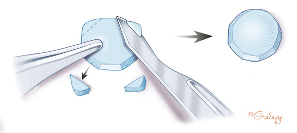 Cartilage disc is shaped for use in tympanic membrane reconstruction, to overlie an ossicular prosthesis, and/or to repair an epitympanic defect. Note the beveling of the cartilage on the surface faci