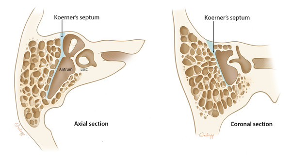 Koerner's septum needs to be penetrated to enter the antrum.