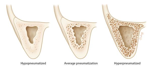 Coronal illustration of variability of mastoid air cells.