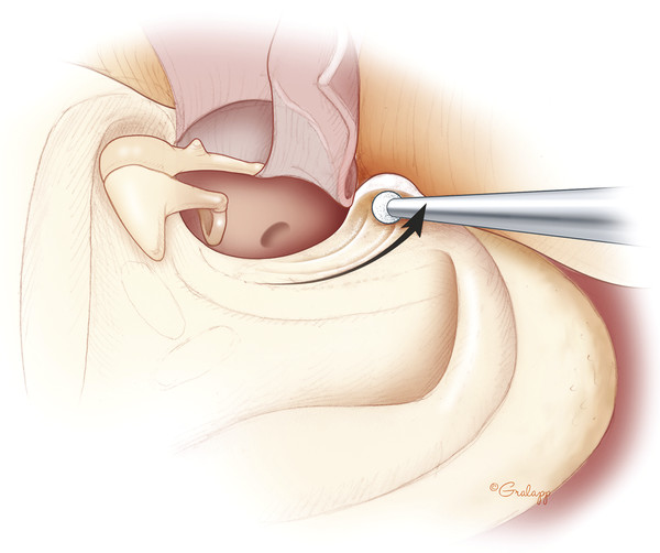 Lowering facial ridge does not require exposure of the facial nerve. It is best to leave 2 to 3 mm of bone over the nerve to maintain a middle ear space.