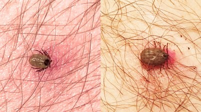 Crowdsourced Tick Images