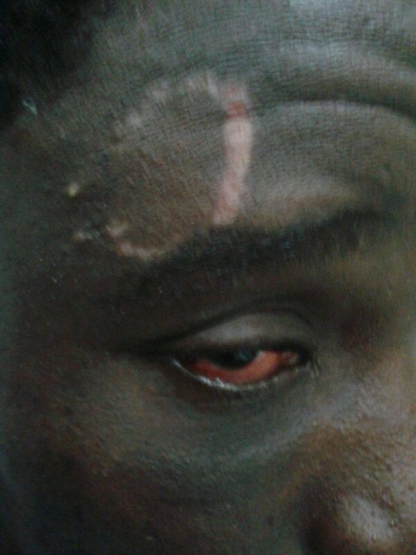 Imagen de uno de los migrantes afectados en la valla de Ceuta cedida por una ONG. / C.F