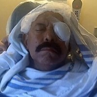 Oscar de León pierde ojo izquierdo tras accidente en Miami
