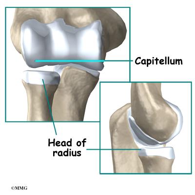 Adolescent Osteochondritis Dissecans of the Elbow ...