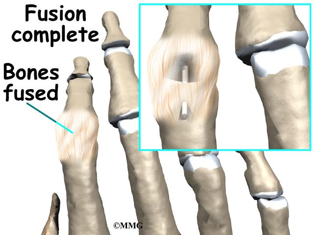 Finger Fusion Surgery   eOrthopod.com