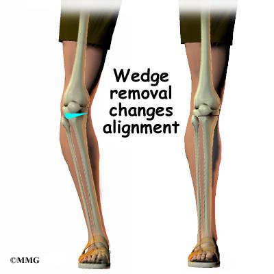 Tibial Osteotomy   eOrthopod.com