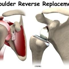 Humerus Bone Diagram Lucas 3 Wire Alternator Wiring Reverse Shoulder Arthroplasty | Eorthopod.com