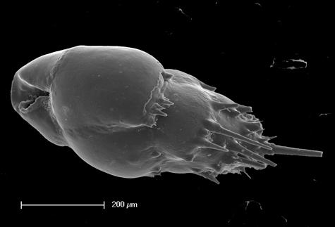 Scanning electron microscope image of Bulimina aculeata foraminifera.