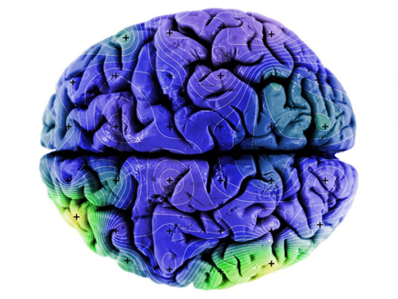 Figure of magnetic remanence in a human brain rendering