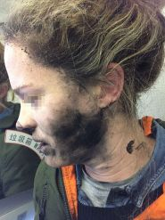 Woman burnt her face