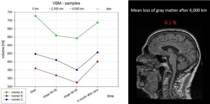 Parte del estudio presentado en el último Congreso Anual de Radiología, donde los científicos del Hospital Universitario de Ulm probaron la pérdida de masa cerebral después de una larga carrera (y su posterior recuperación).