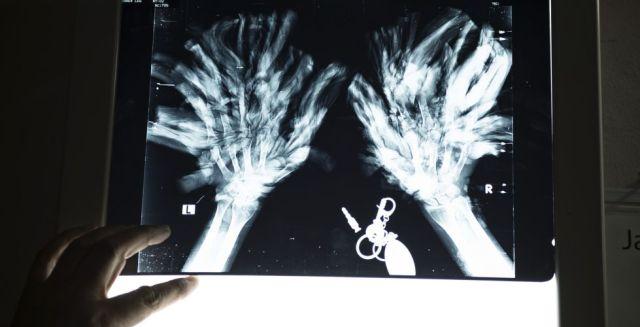 """El doctor Samanto Lal Sen señala en una radiografía de las manos de Bajandar: """"No es fácil dar con los dedos, y tenemos que tener cuidado para no dañarlos""""."""