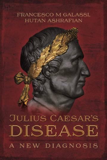 Portada del libro sobre la enfermedad de Julio César.