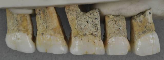 Los dientes de 'Homo luzonensis' hallados en la cueva de Callao (Filipinas)