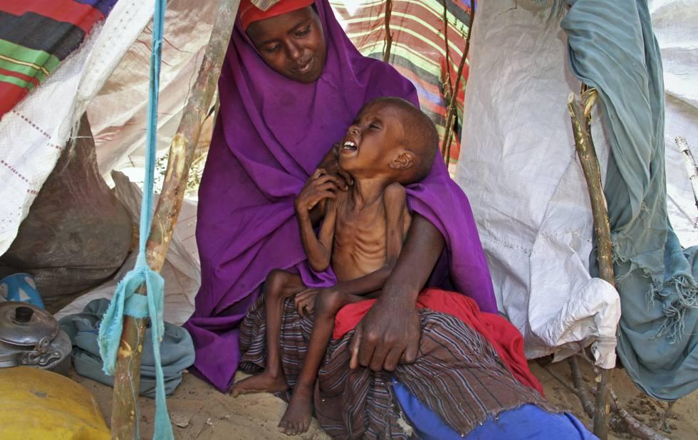 Una mujer y su hijo, desnutrido, a las afueras de Mogadiscio (Somalia), el pasado marzo.