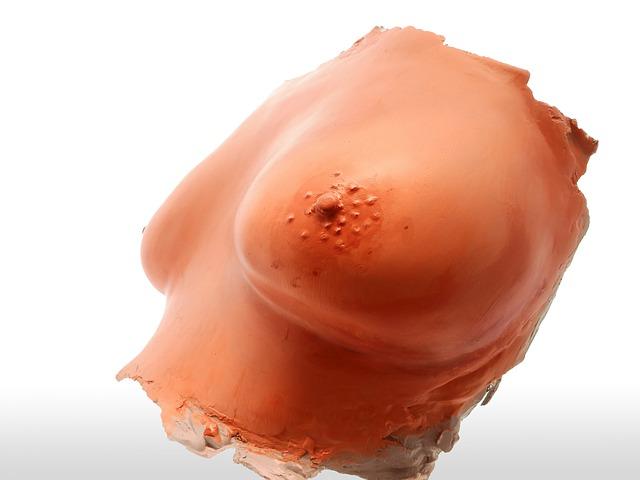 Мастопатия при климаксе симптомы фиброзно-кистозной формы лечение