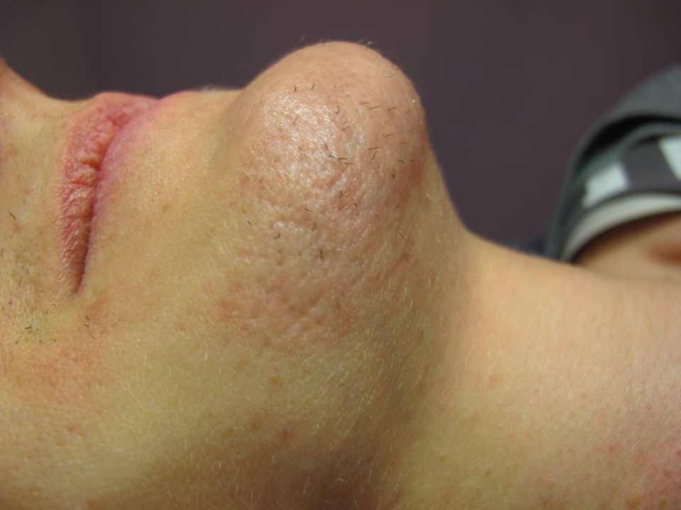 Epilation Gesicht - Minderunge Entzündung