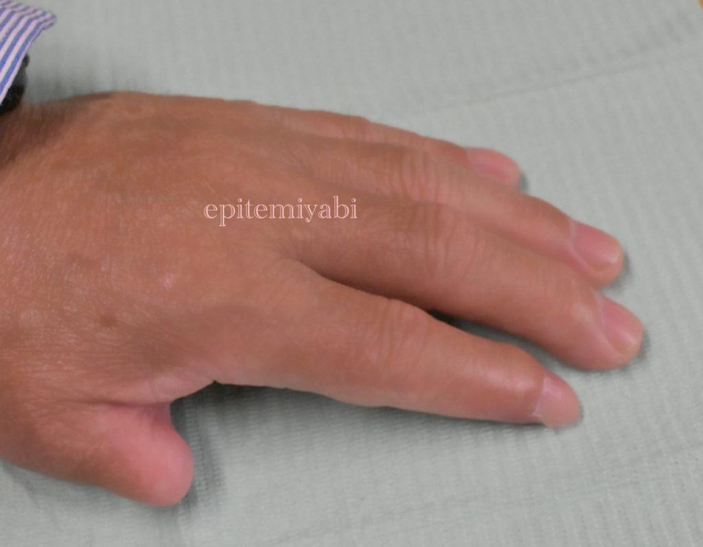 草刈り機の事故で左手親指を切断されエピテみやびに相談しにこられたお客様の指の写真画像