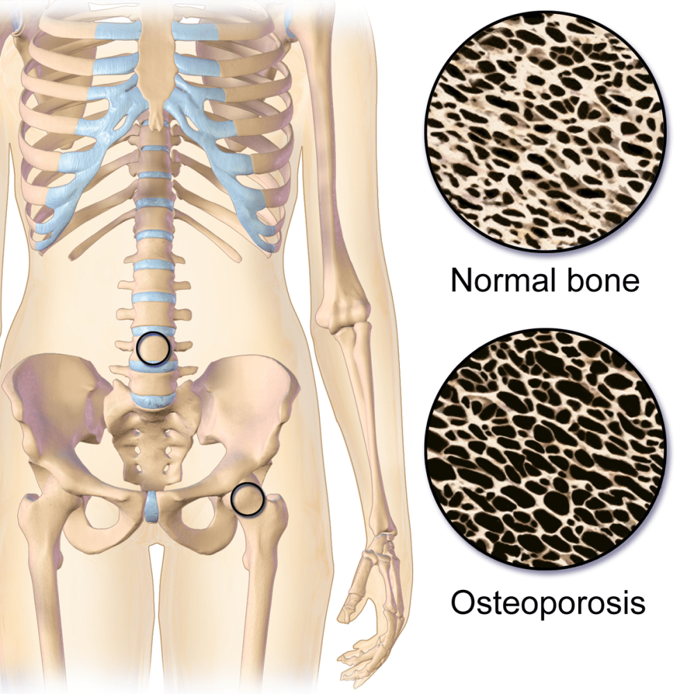 medium resolution of building strong bones is best defense against osteoporosis new york amsterdam news the new black view