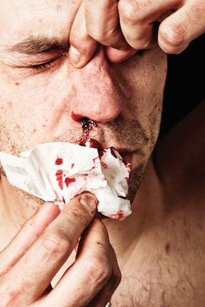 Epistaxis-W