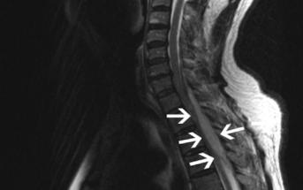 Diagnosing Spinal Epidural Abscesses