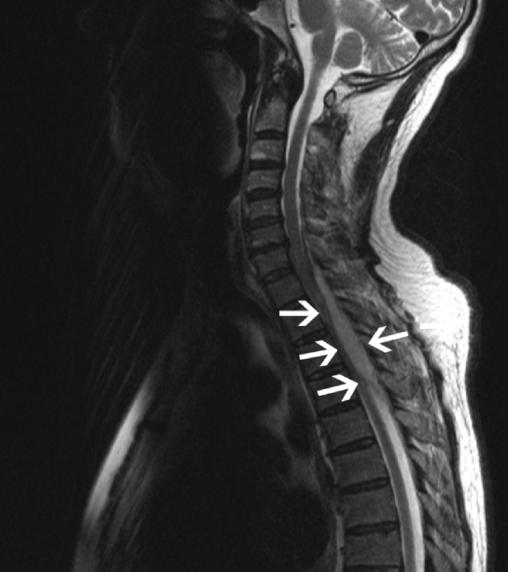 SpinalAb2