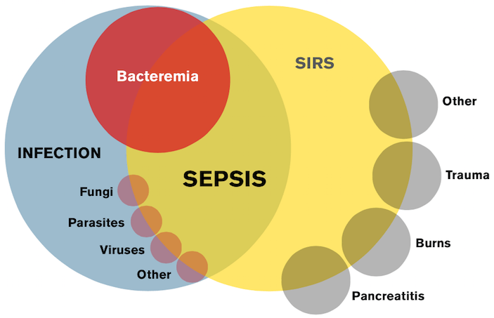 Image result for Sepsis