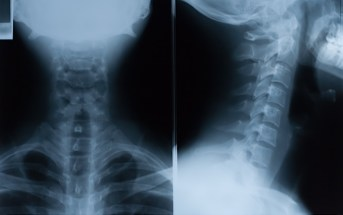 The Plain Cervical Spine X-Ray is Almost Dead