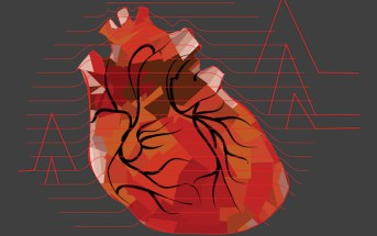 Remote Ischemic Conditioning: New Adjunct for STEMI Care?