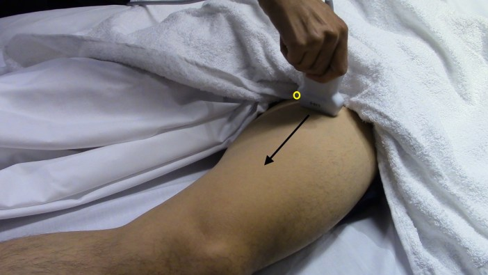 Ultrasound Image 1