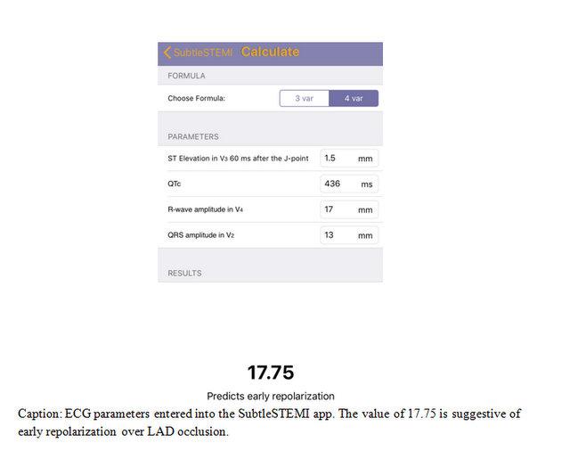 EP Monthly EKG calculate
